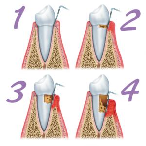 Tips to Prevent Gum Disease